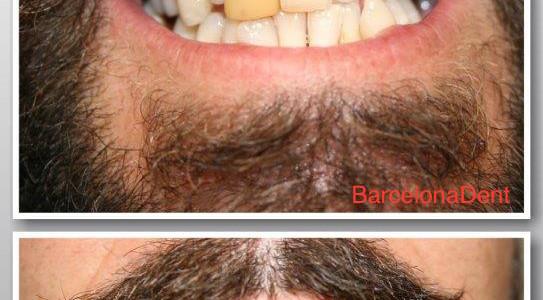 barcelonadent